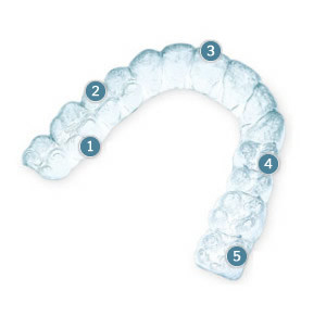 invisalign-illy-numbered