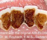 Platinum Dental Care introduce Air polishing