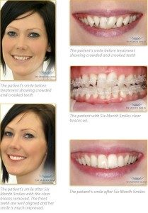 Perfectly straight teeth in just 6 months