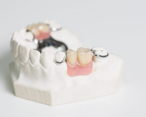 Dentures - Platinum Dental Care