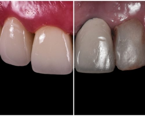 Smile Makeover - Platinum Dental Care