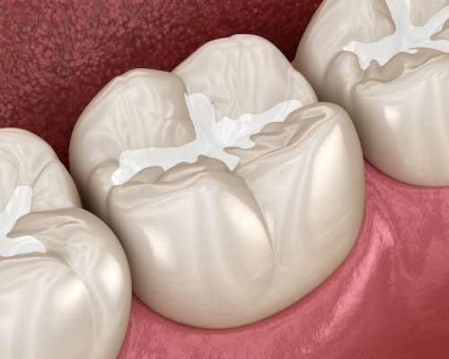 Fissure Sealants - Platinum Dental Care