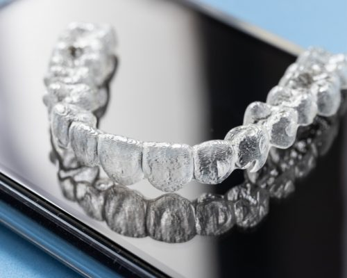 Invisalign® Canary Wharf - Platinum Dental Care