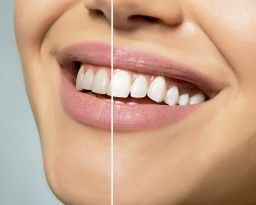 Teeth Whitening in Canary Wharf - Platinum Dental Care