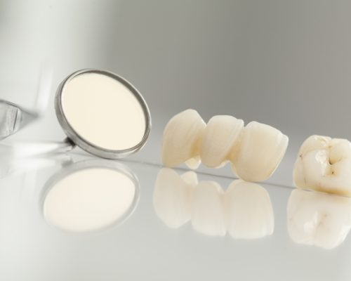 Bridges - Platinum Dental Care
